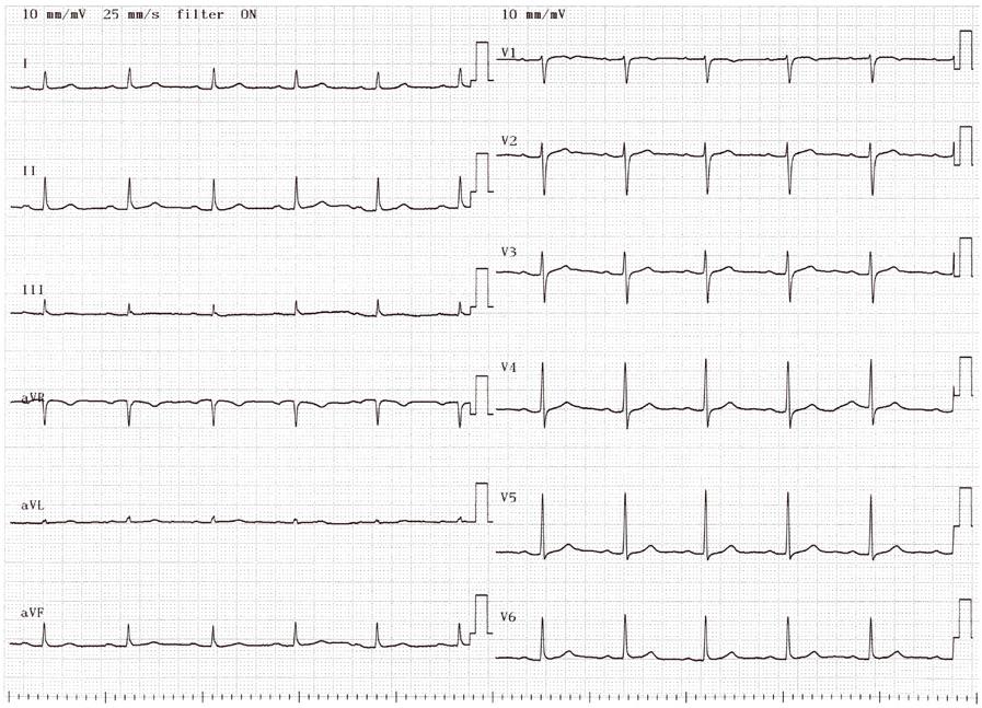 心電図 心電図を記録して、安静心電図や運動負荷心電図検査ではとらえられない心臓の異常(不整脈等)